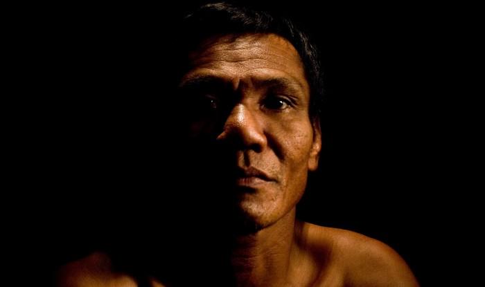 Scars of Cambodia